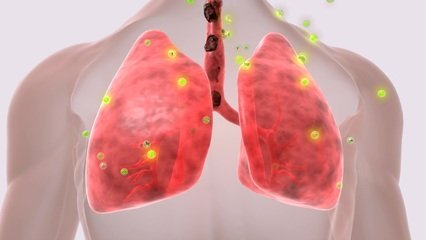 常年位居恶性肿瘤榜首 你需要了解一下肺癌