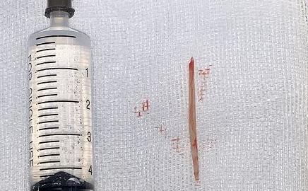 鱼刺卡喉一周未取出,五旬患者咽喉形成脓肿