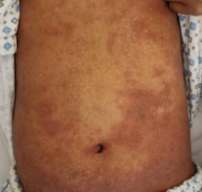 改装免疫细胞,清除体内癌细胞,深圳一家医院做到了